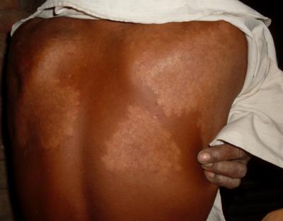 Skin rash GMO farmer